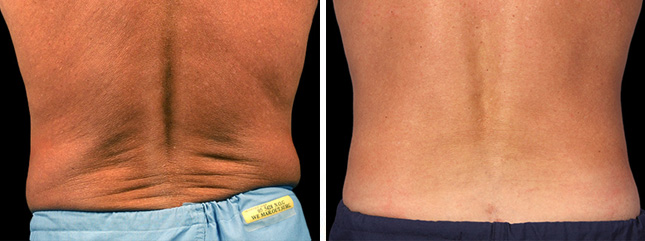 Male patient before and after CoolSculpting procedure - photos
