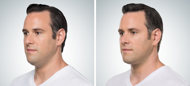 Male patient before and after Kybella procedure - photos