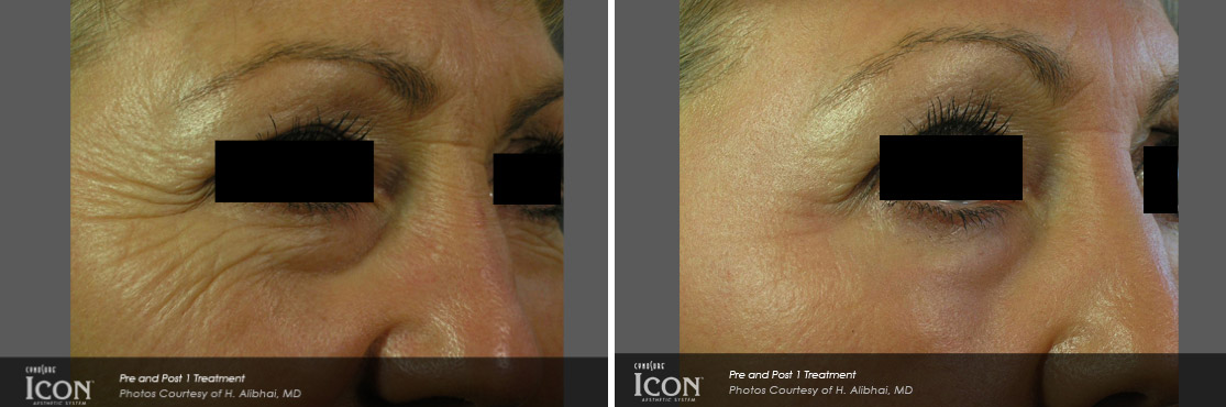 Palomar Icon Laser before/after photo
