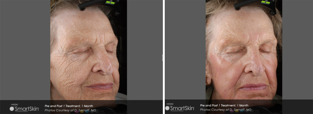 SmartSkin before/after photo